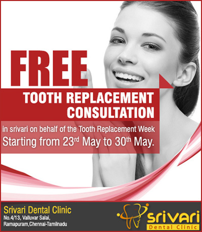 Tooth-replacement-consultation